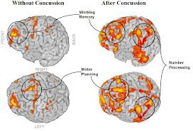brain before and after concussion scans