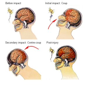 impact injuries on brain cross cuts