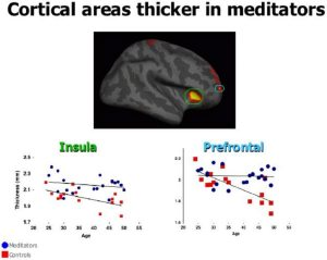insight meditators brains