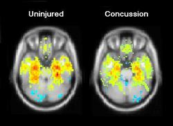 MRI_scan_concussion