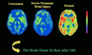 normal severe TBI concussion images