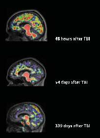 TBI Amyloid Plaque over time