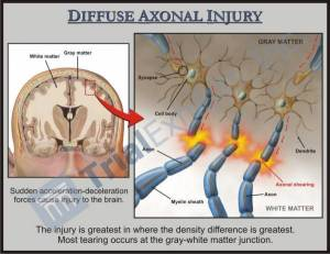 TBI Diffuse Axonal Injury