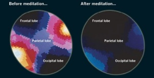 Frontal lobe meditation before and after