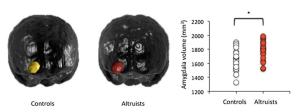 Amygdala Altruists