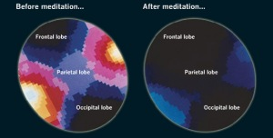 meditation-mind-brain-waves