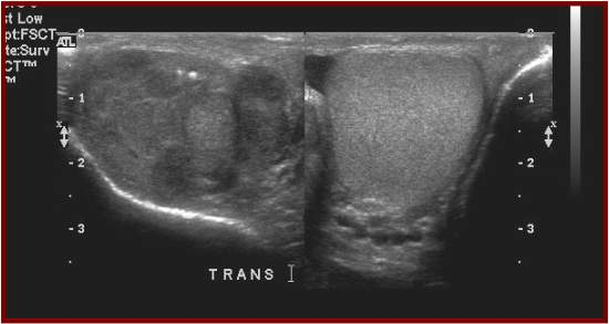 ultrasound testicles